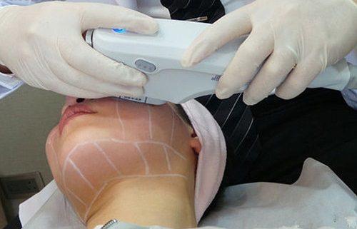 Ultrasonido HiFu